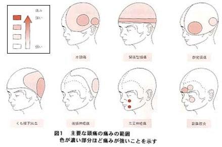 い 原因 頭痛